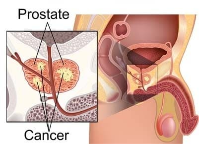 Erectile Dysfunction and Prostate Problems
