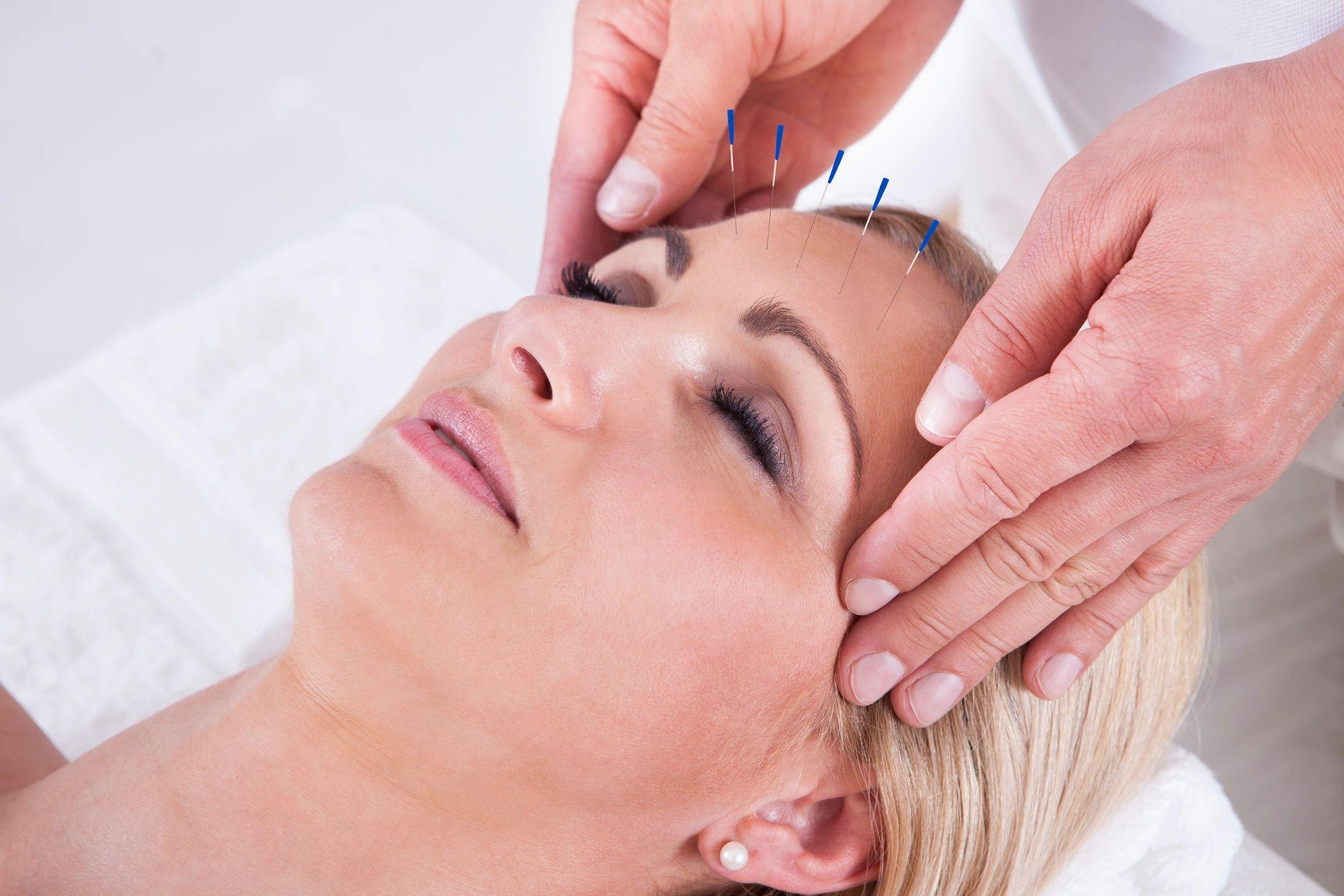 Macular Degeneration Acupuncture