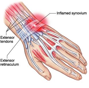Case Study - Wrist Tendonitis